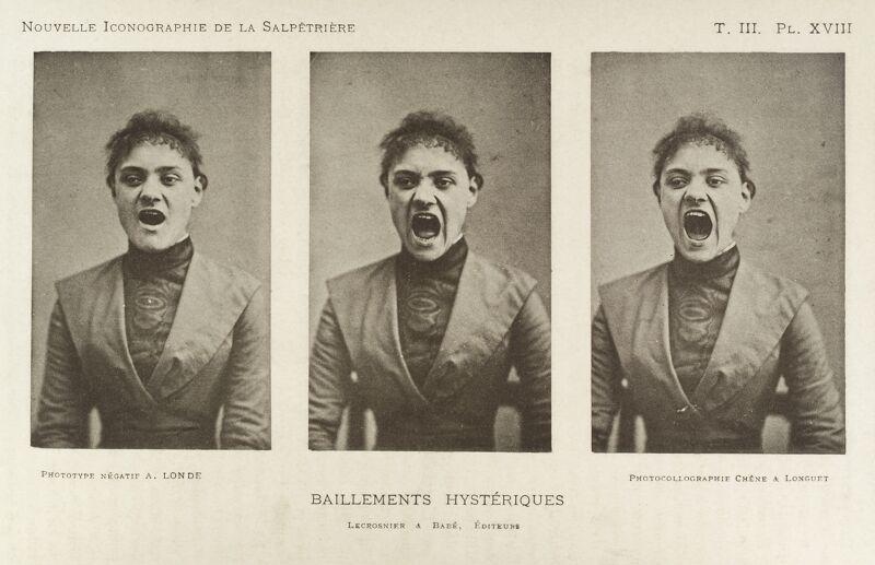 Hysterisch geeuwen, serie van drie