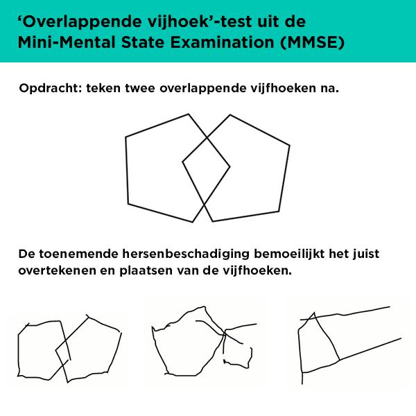 tekentest uit de MMSE