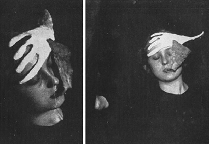 """Uit het boek """"Phenomena of Materialisations"""" van Prof. Schrenck-Notzing. Ectoplasma geproduceerd door het medium Stanislava P op 15.02.1914)"""