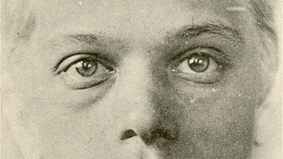 Nouvelle iconographie de La Salpetrière 1893 Tome VI Planche XXX